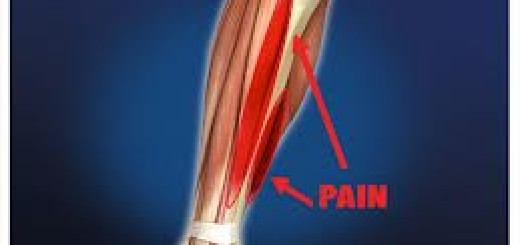 Shin-Splints-Massage