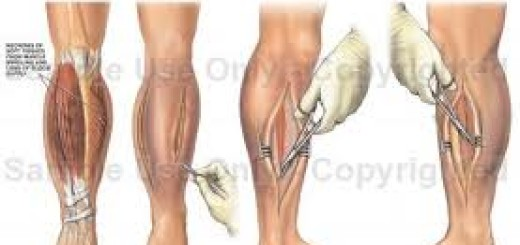 compartment-syndrome-massage