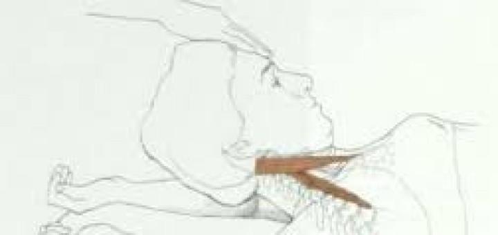 orthopedictests-anterior-neck
