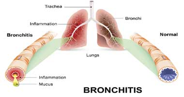 Chest Cold Massage Therapy Treatment Bronchitis