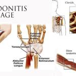 tendonitismassage