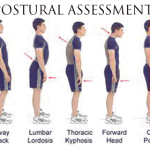 posturalassessment