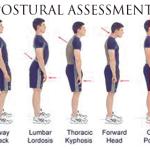 posturalassessment