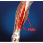 Shin-Splints-Massage