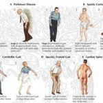 Abnormal Gaits - Problems with Walking - Massage Therapy