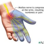 carpal-tunnel-massage