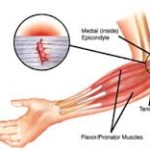 golfers elbow massage