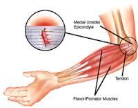 golfers elbow massage