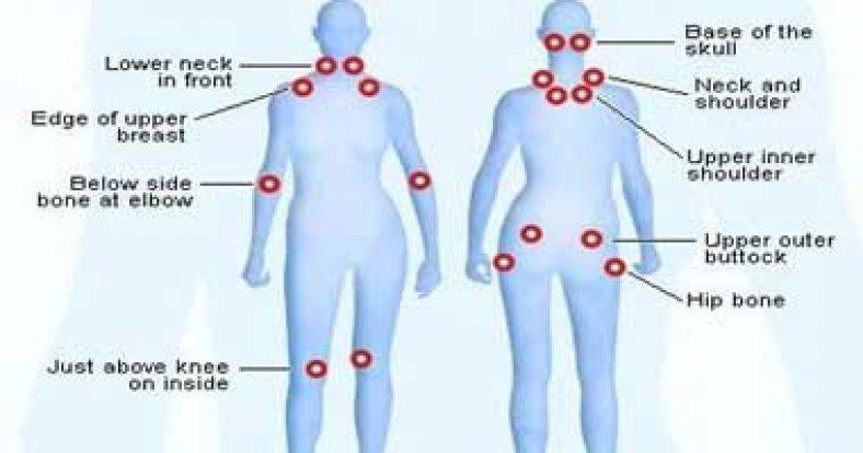Fibromyalgia Massage Therapy Treatment