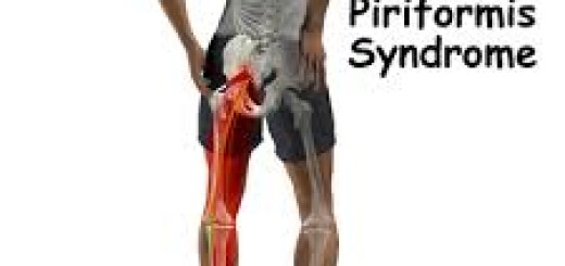 Piriformis Syndrome Massage Treatment