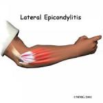 tennis elbow massage