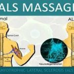 ALS Massage Therapy Treatment